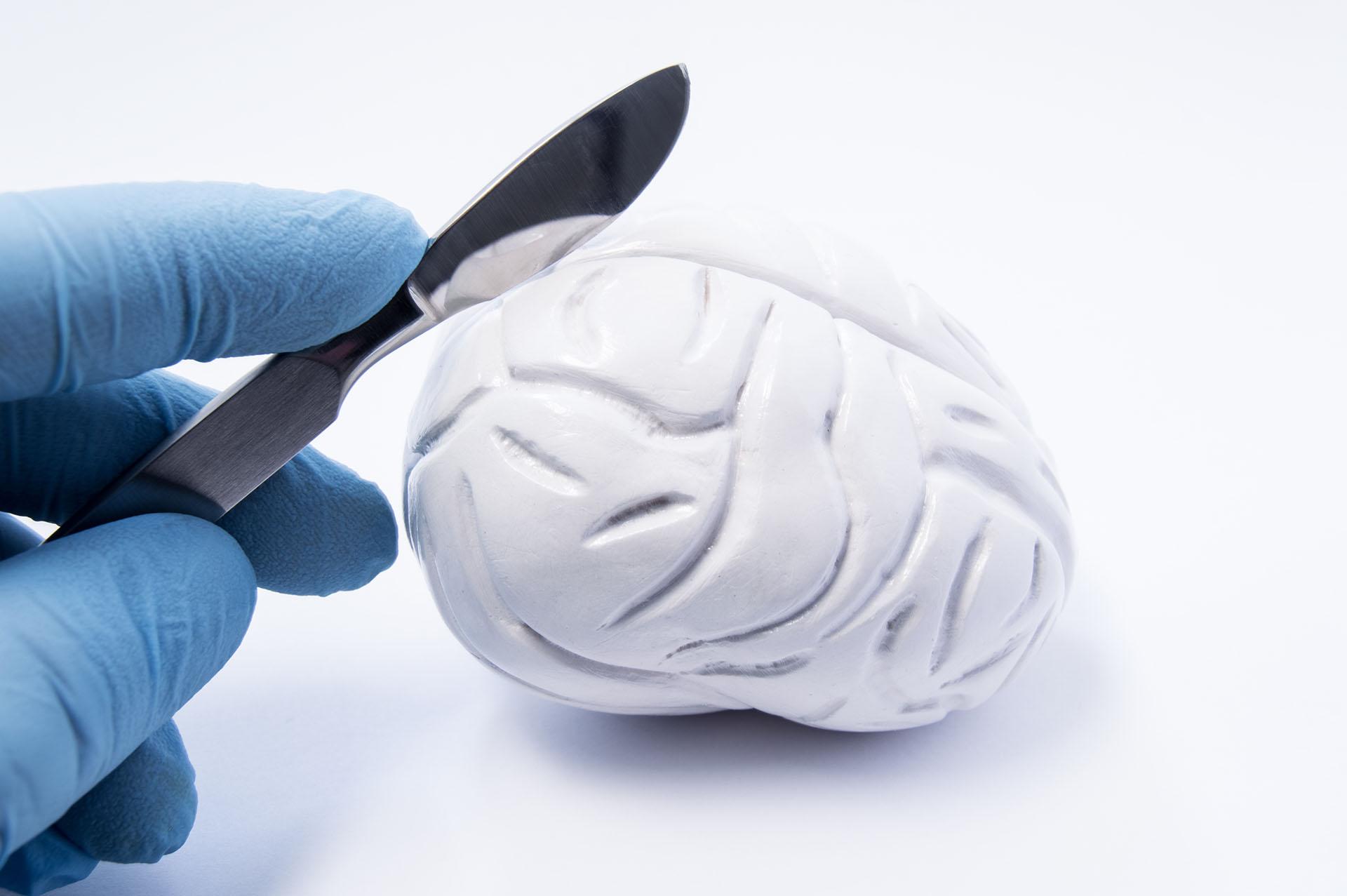 大腦連合切除術