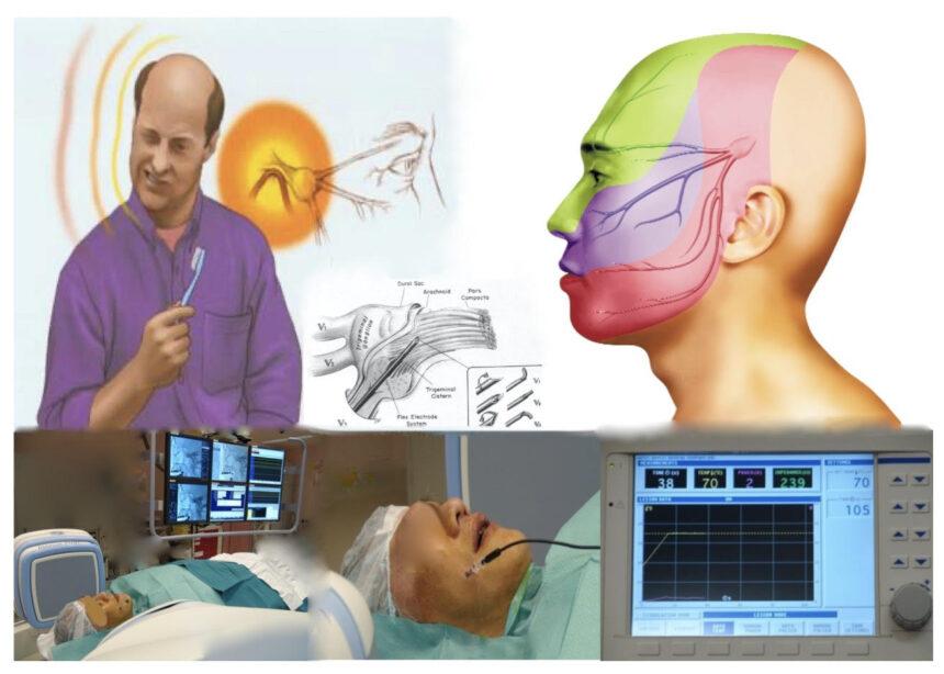 射頻治療三叉神經痛