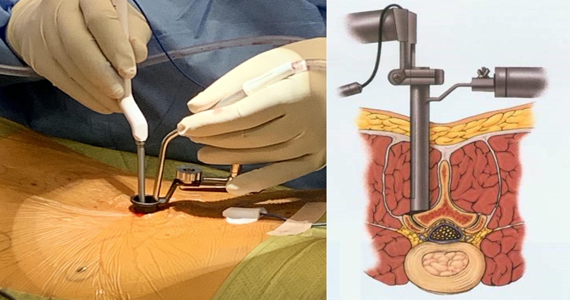管道式微創椎間盤切除手術