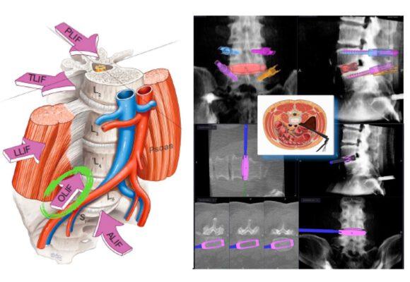 斜側前脊椎融合手術