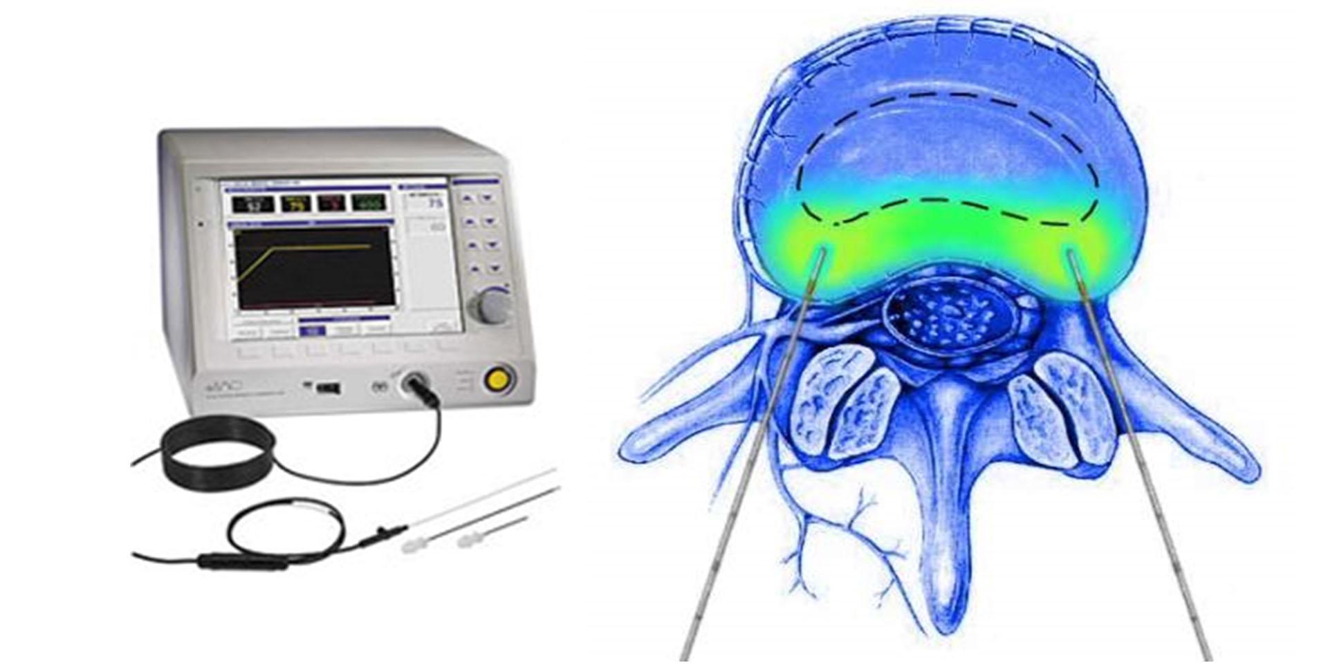 椎間盤射頻手術