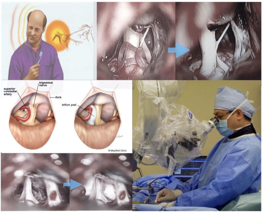 開顱三叉神經減壓手術