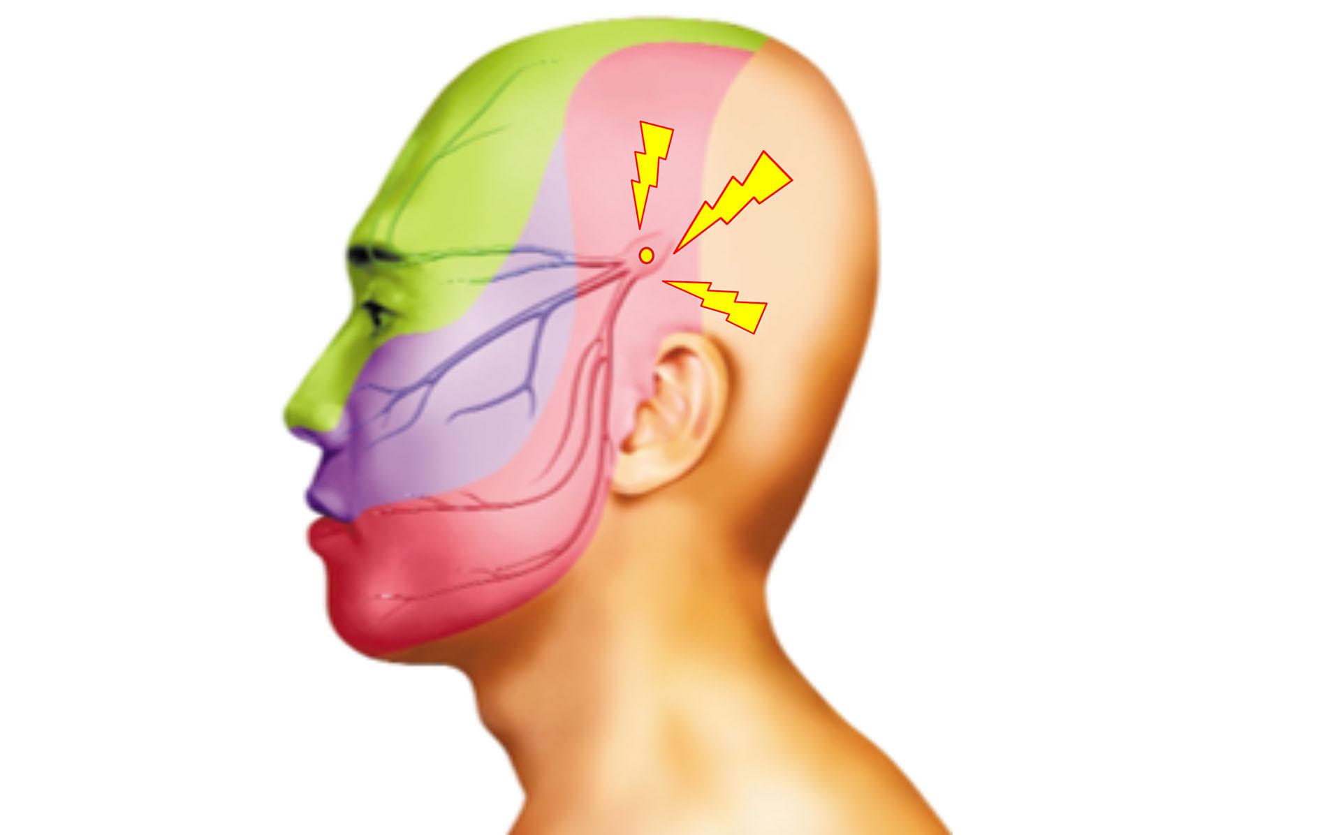 三叉神經痛