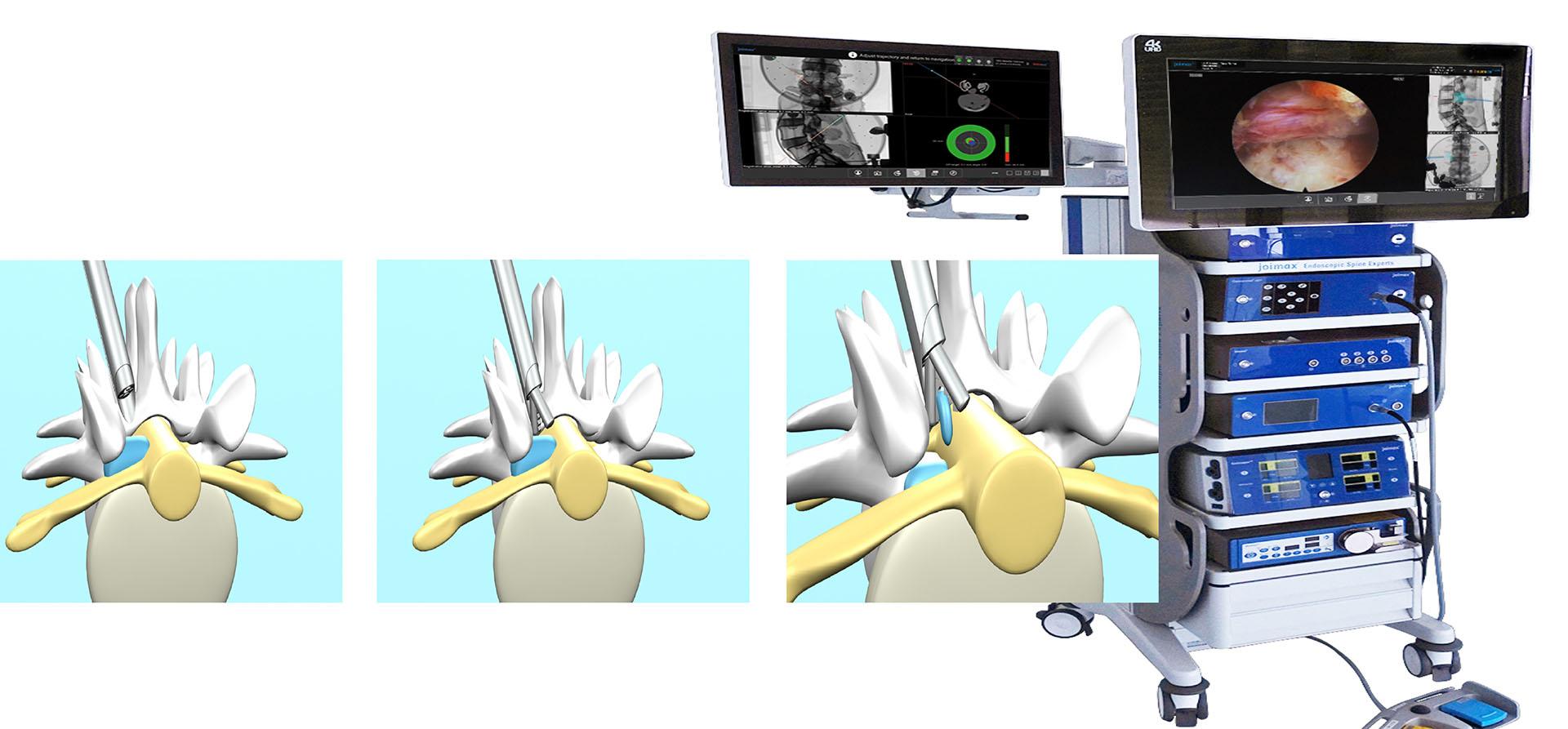 經神經孔全內視鏡椎間盤切除手術