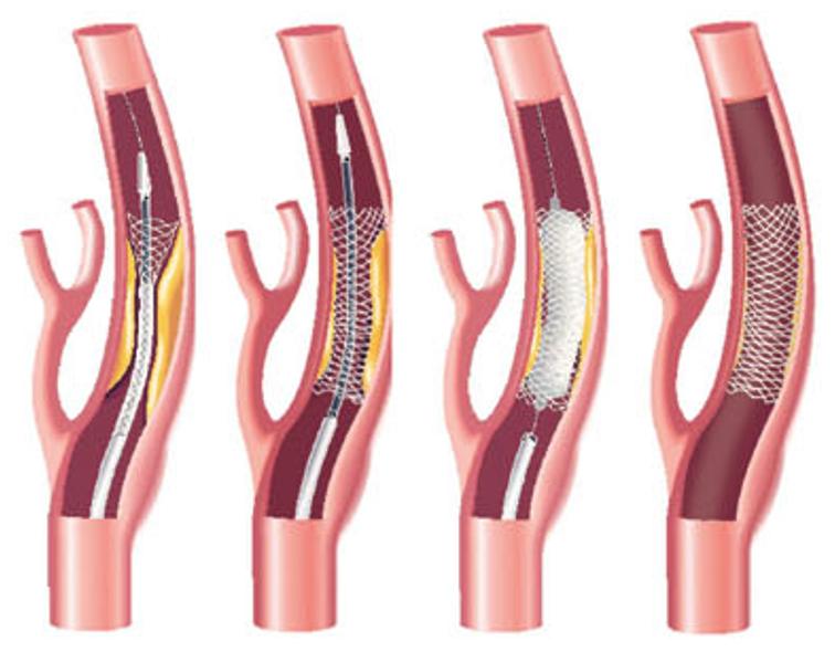 頸動脈支架植入手術