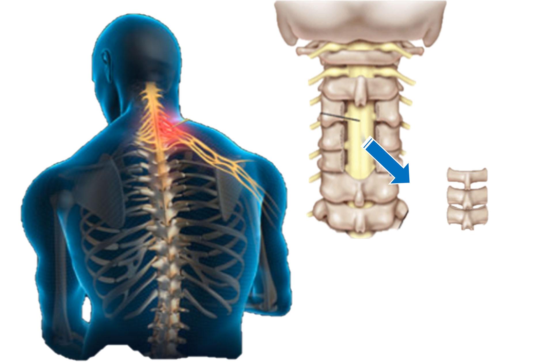 頸椎椎板切除手術