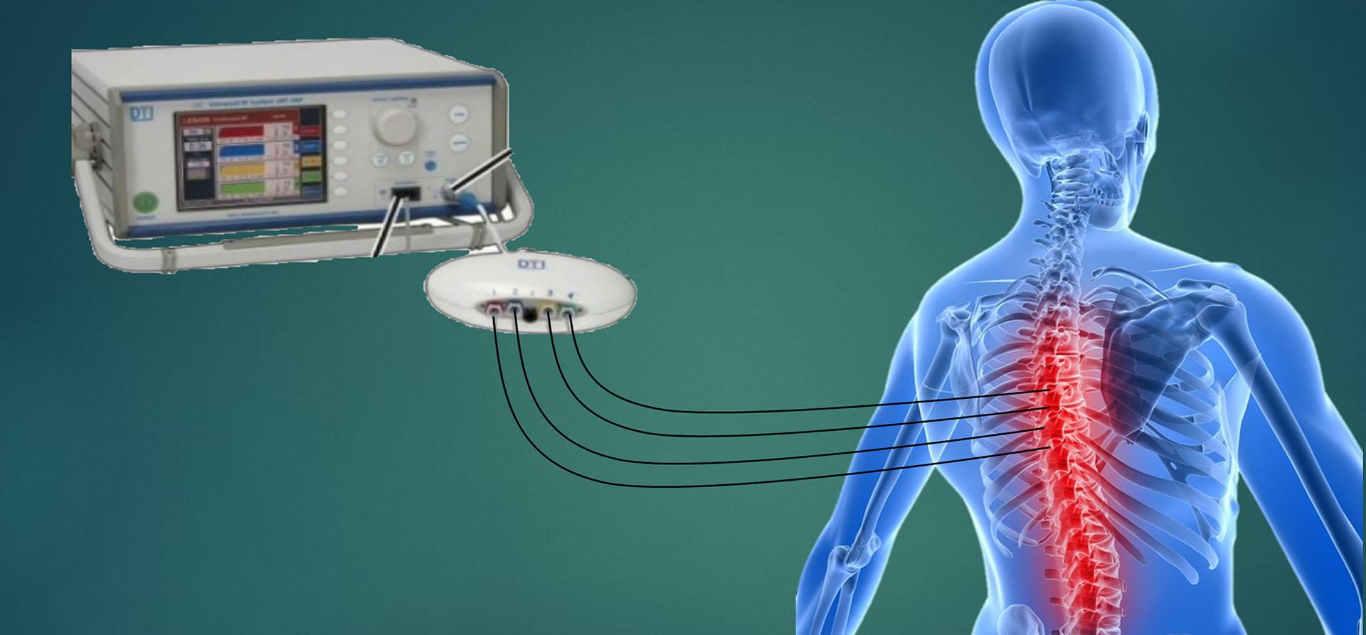 射頻治療慢性神經痛