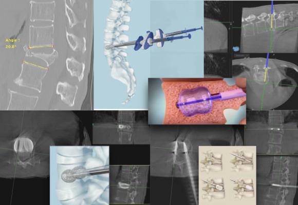 水球脊椎骨折復位 / 脊骨支架植入手術