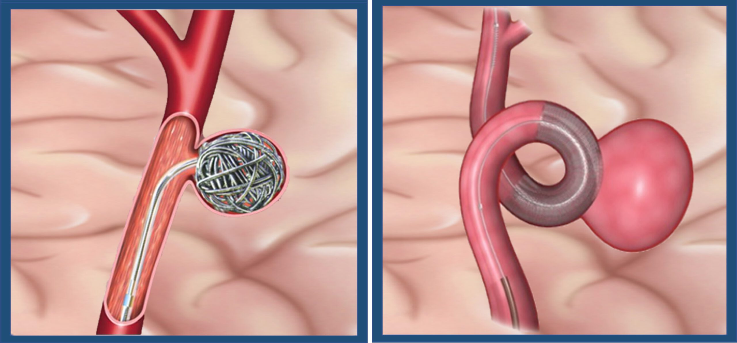 腦血管內動脈瘤封閉手術