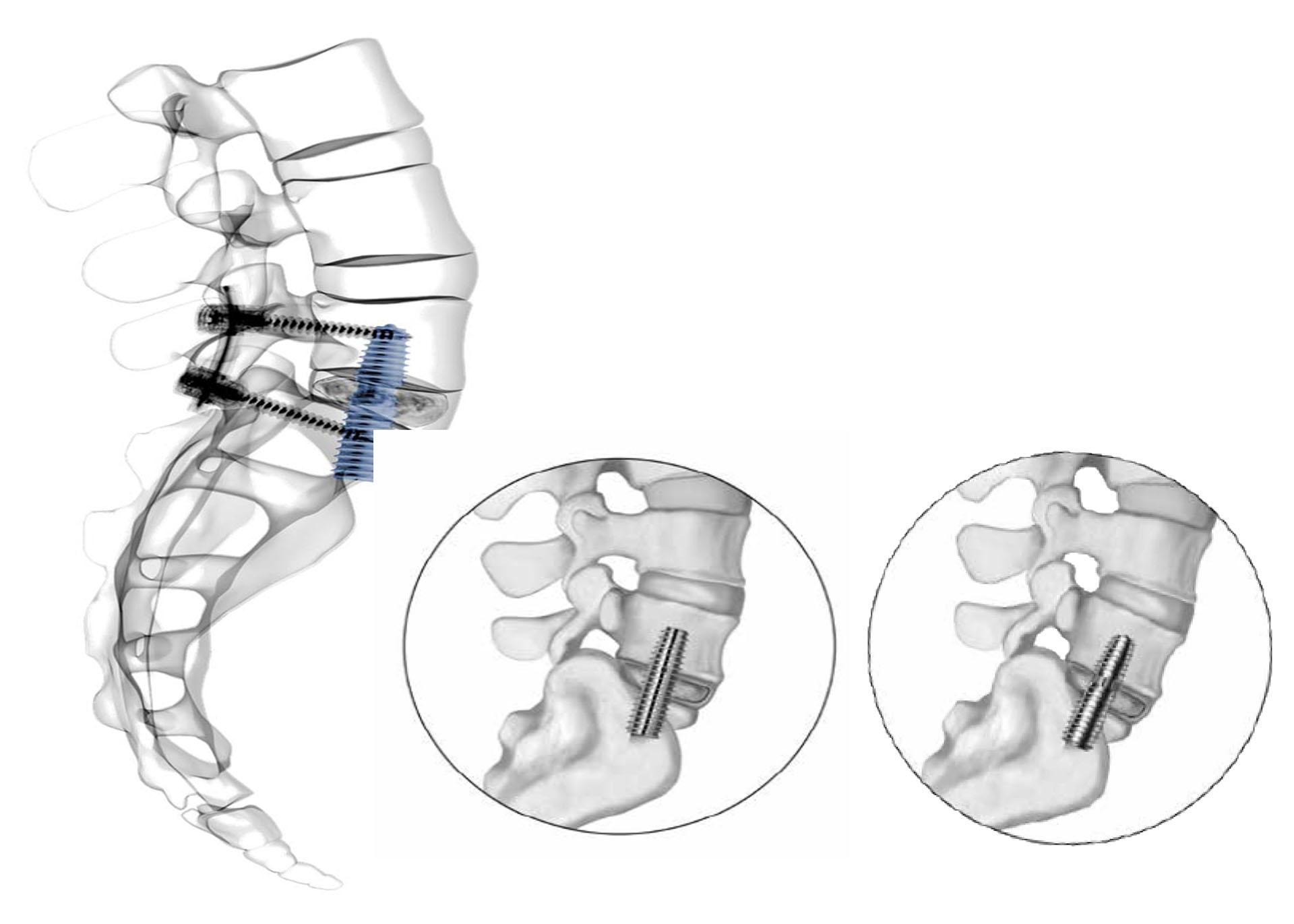 軸向腰椎椎間融合手術