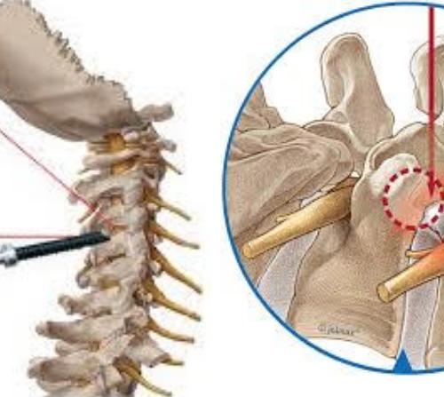頸椎內視鏡 神經孔減壓手術